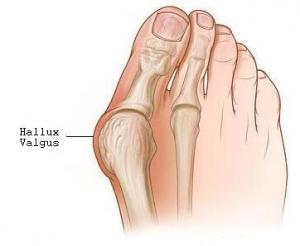 Img comment traiter les oignons aux pied sans chirurgie 138 300